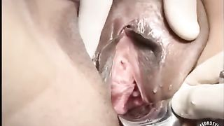 Female patient has her vagina spread with medical tools--_short_preview.mp4